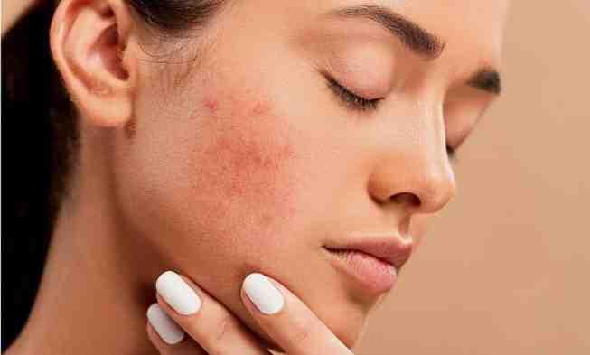 Comment éliminer l'excès de sébum sur le visage ?