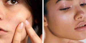 Quel est le meilleur  Comment faire disparaître les imperfections du visage ? ?