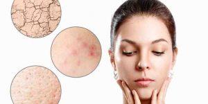 Quel est le meilleur  Comment traiter les imperfections du visage ? ?