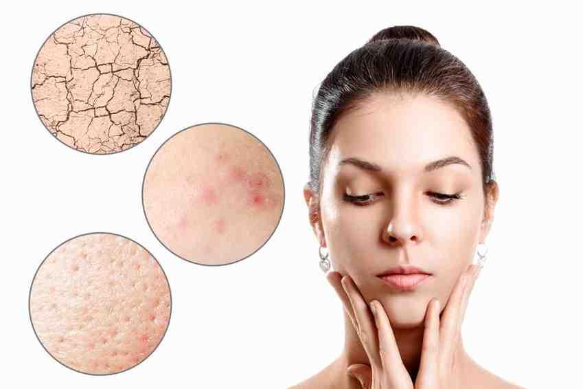 Quel est le traitement le plus efficace contre l'acné ?