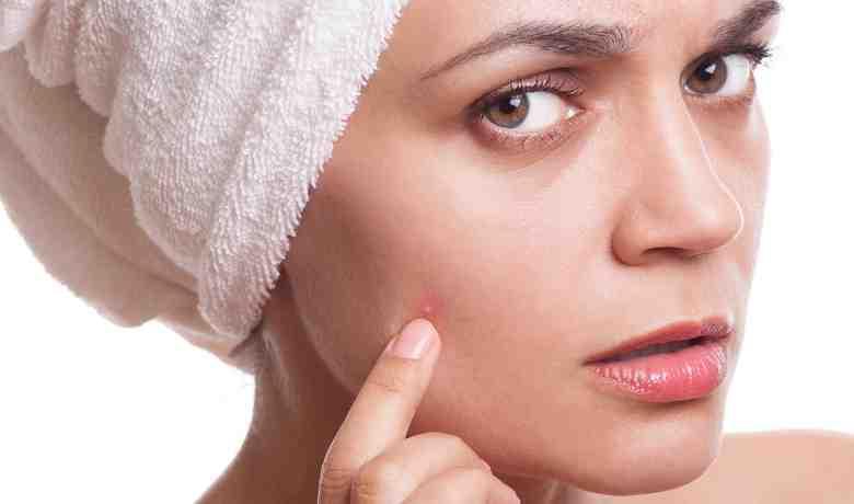 Quelle crème pour peau à imperfection ?