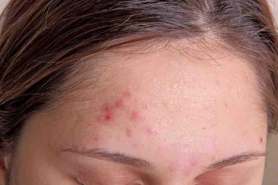 Qu'est-ce qu'une peau à imperfections ?